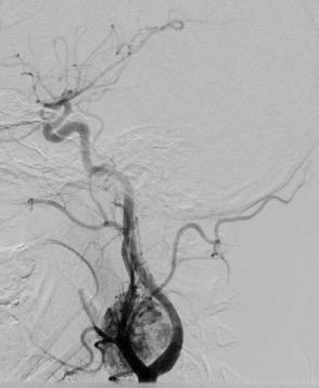 Glomus-carotideo-arteriografia