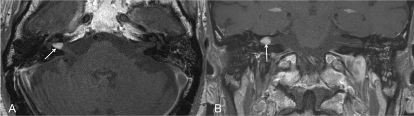 neurinoma-del-acustico-hallazgos