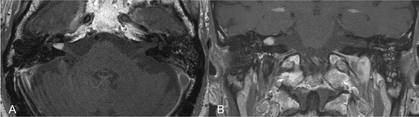 neurinoma-del-acustico