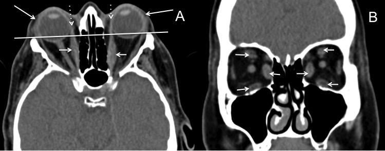 oftalmopatia-tiroidea-hallazgos
