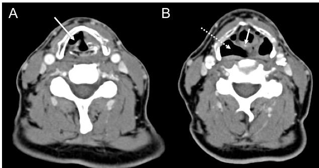 paralisis-de-cuerda-vocal-tomografia-hallazgos
