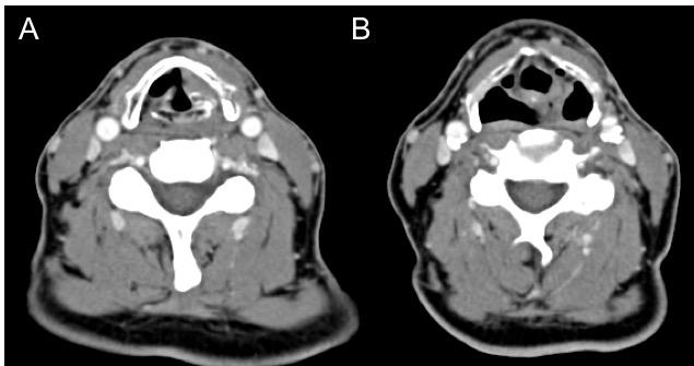 paralisis-de-cuerda-vocal-tomografia