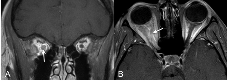 Neuritis-optica-contraste-hallazgos