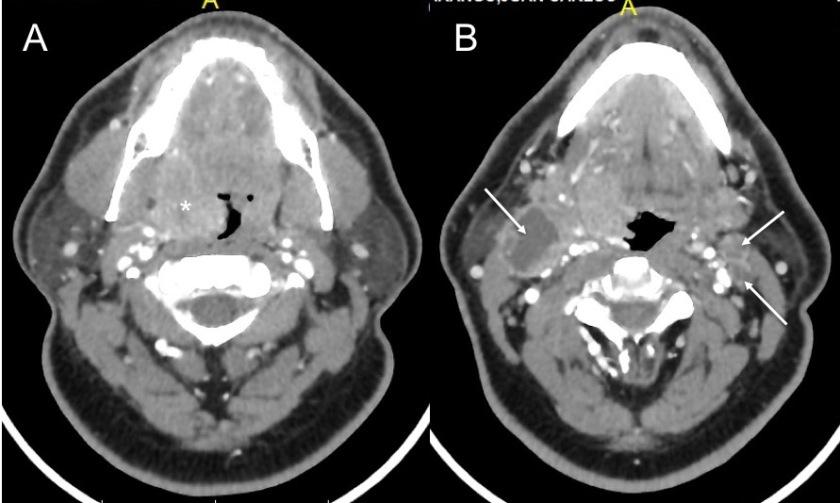Carcinoma-amigdala-hallazgos