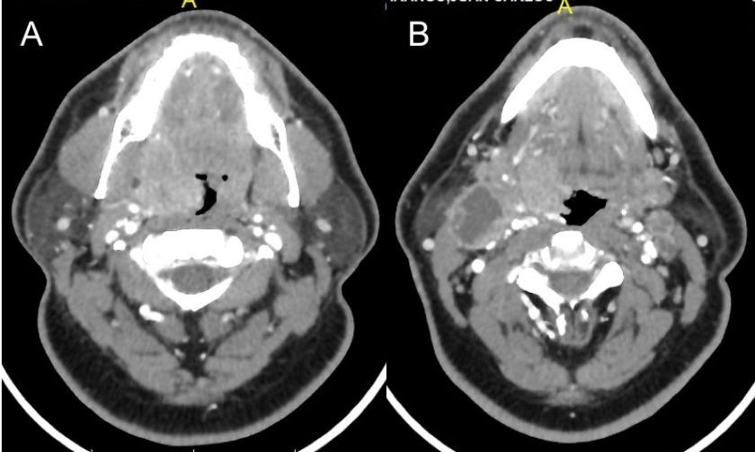 Carcinoma-amigdala