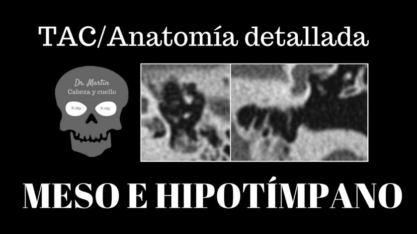 Meso e hipotimpano