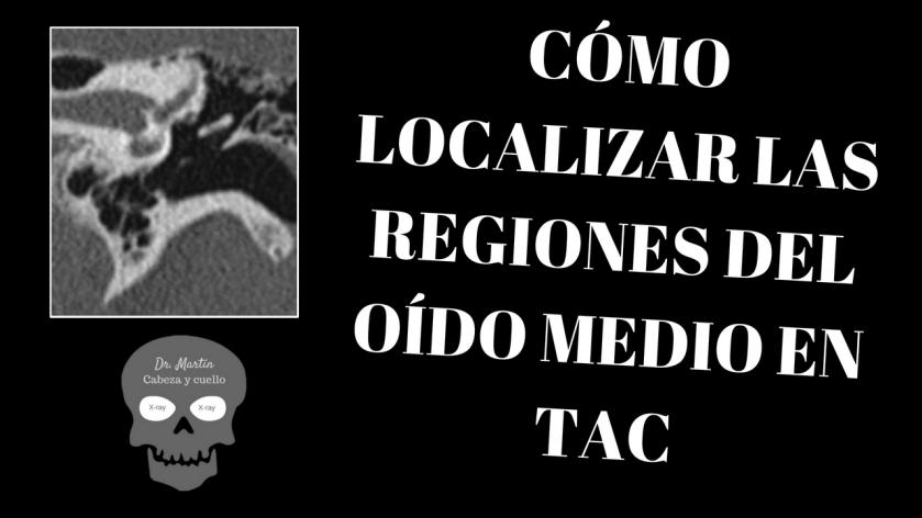 Regiones o subdivisiones del oído medio