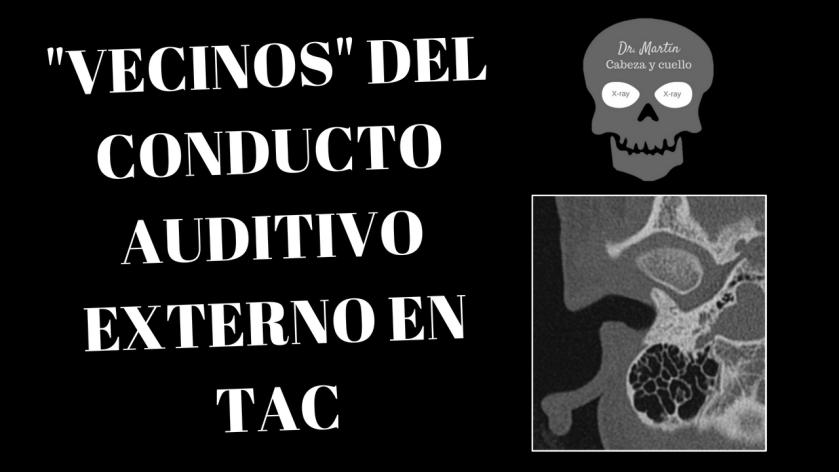 _Vecinos_ del conducto auditivo externo en tomografía