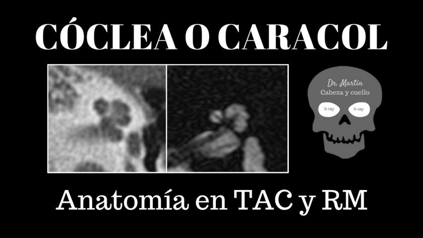 Cóclea-anatomía-radiológica