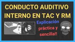 Conducto auditivo interno TAC y RM