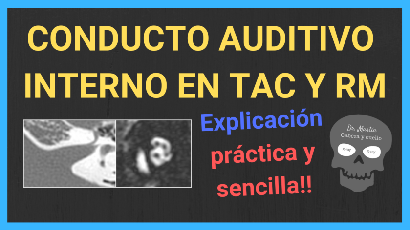 Conducto auditivo interno TAC y RM