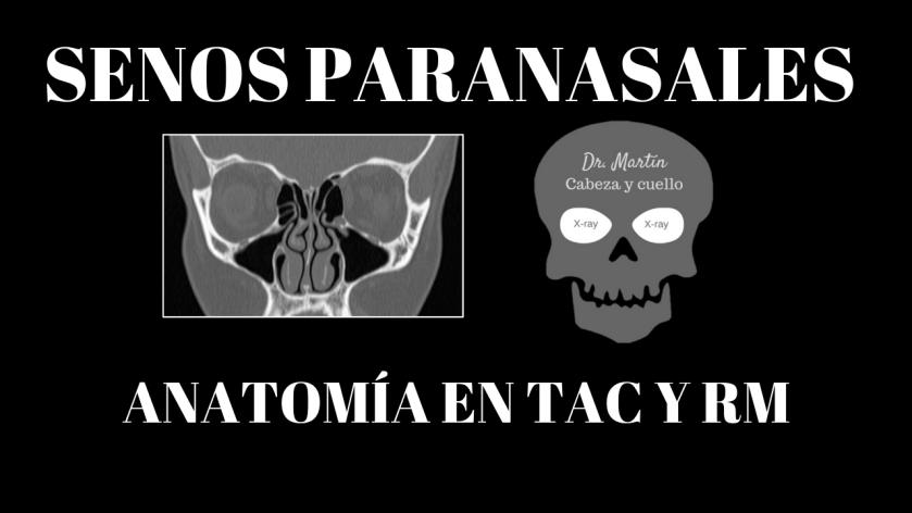 anatomia radiologica senos paranasales