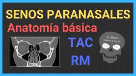 Senos paranasales anatomia radiologica