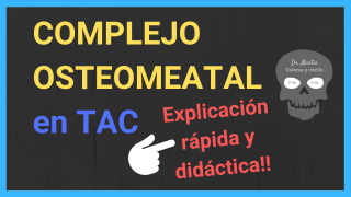 Complejo osteomeatal