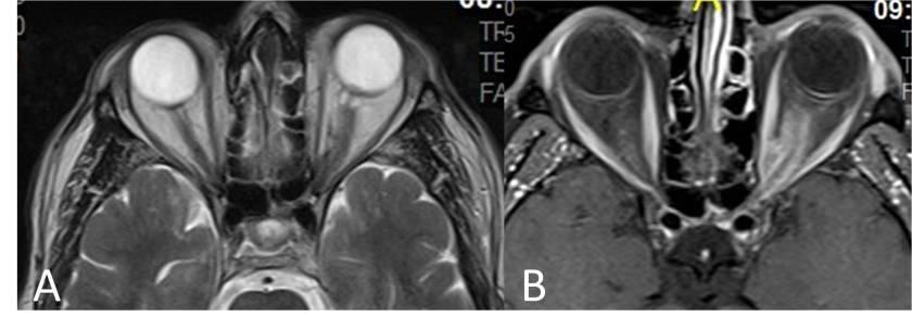 meningioma-optico-RM-axial