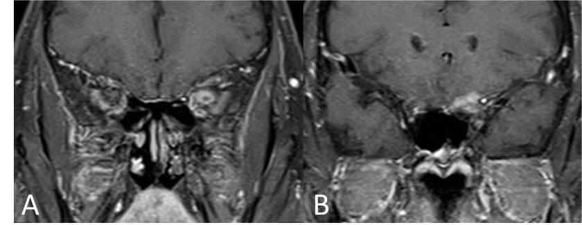 meningioma-optico-RM-coronal