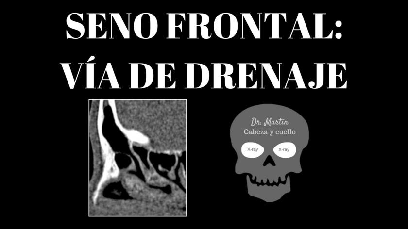 drenaje del seno frontal-2
