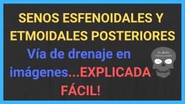 drenaje seno esfenoidal