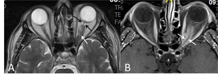meningioma-optico-RM-axial-hallazgos