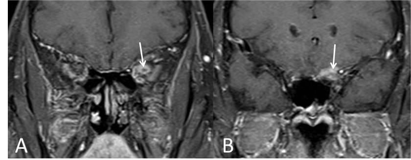 meningioma-optico-RM-coronal-hallazgos