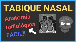 tabique nasal TAC anatomía