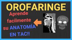 TAC de cuello orofaringe