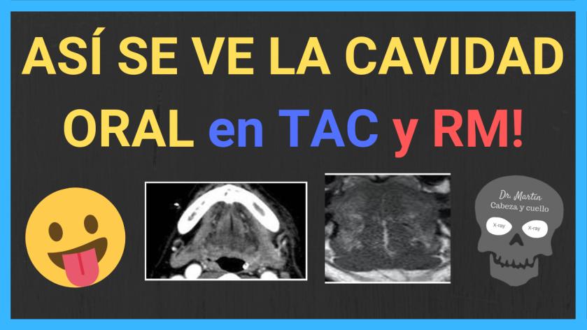 Cavidad-oral-tac-rm-anatomia