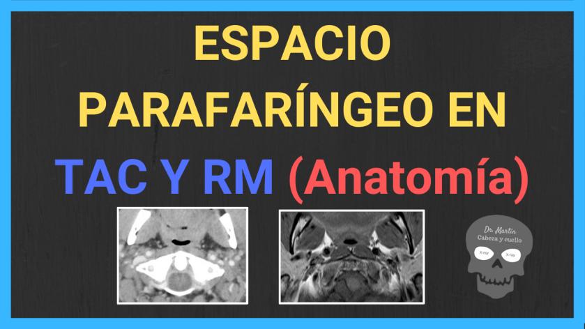 espacio parafaringeo tac y RM anatomia