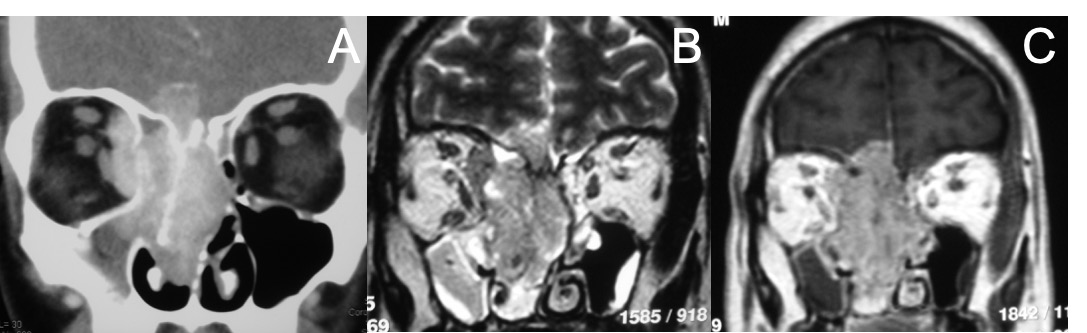 Estesioneuroblastoma-TAC-RM