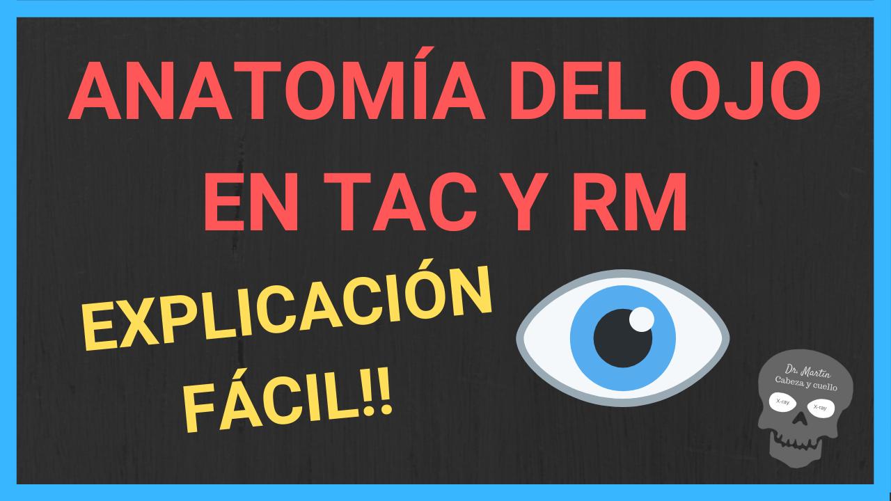 globo ocular anatomia en tomografía y RM