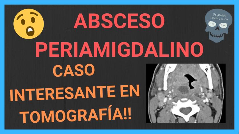 absceso-periamigdalino