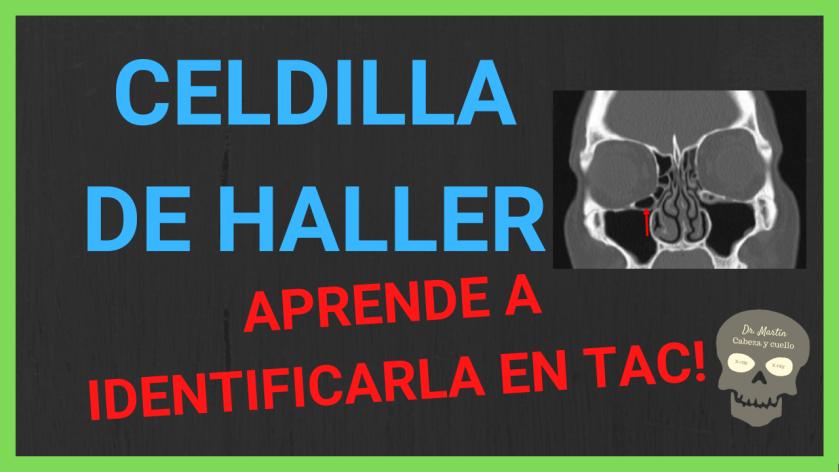 celdilla de Haller