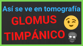 glomus timpanico tomografia