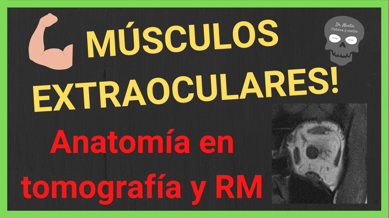 musculos extraoculares anatomia radiologica