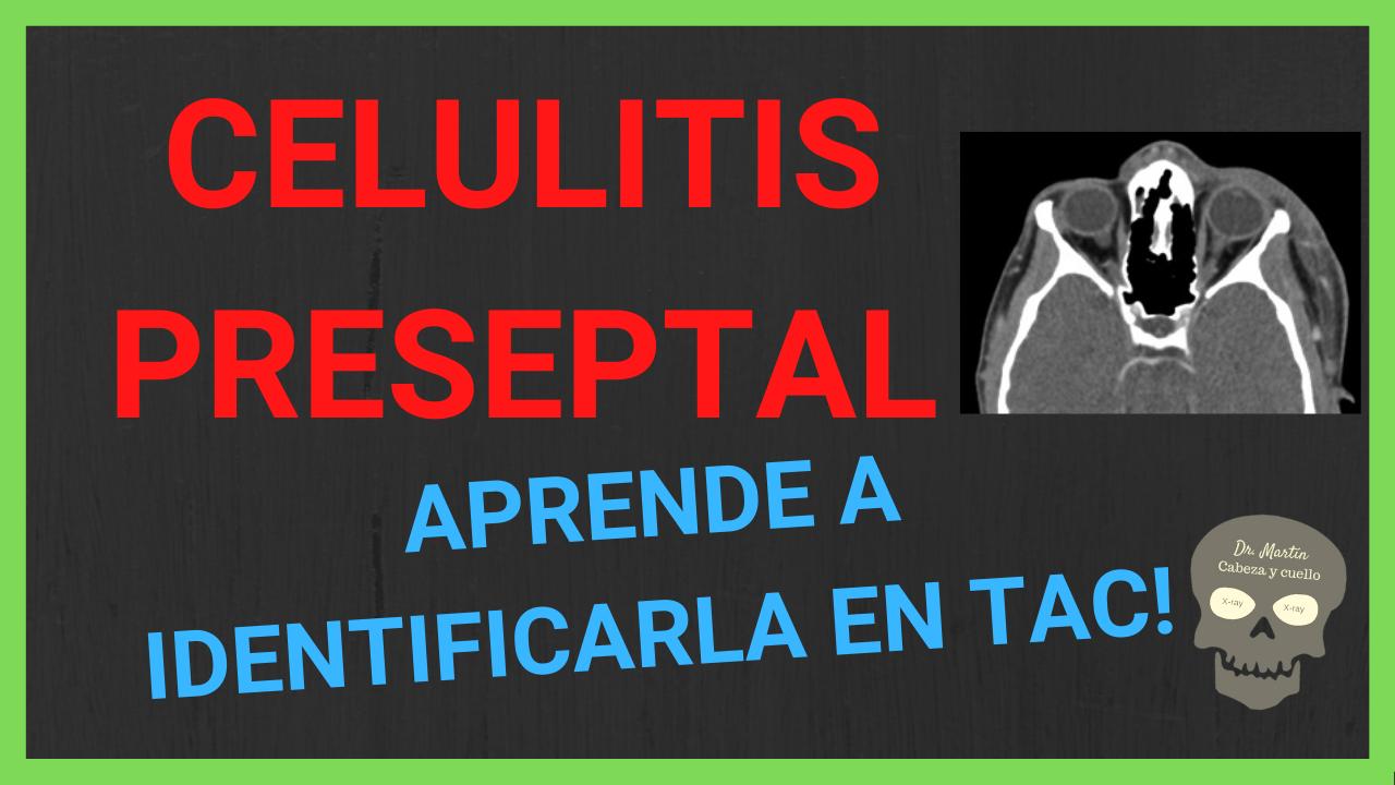 celulitis preseptal tomografia