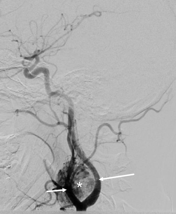 Glomus-carotideo-arteriografia-hallazgos