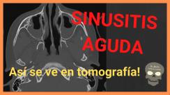sinusitis aguda tomografia