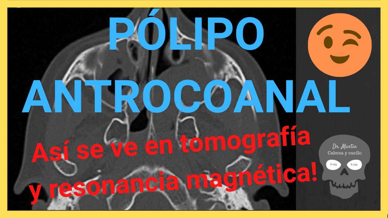Polipo antrocoanal tomografia y resonancia