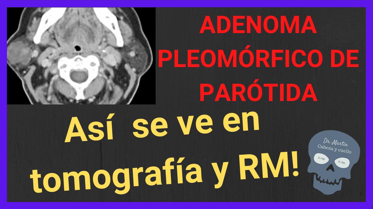 ADENOMA PLEOMORFICO DE PAROTIDA TAC Y RM