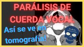 paralisis de cuerda vocal