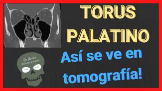 Torus palatino en tomografia